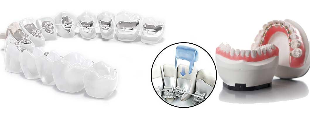 ortodonti-tedavi-yontemleri